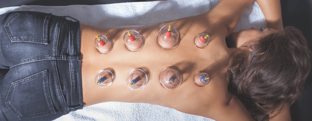 cupping-parc-physical-therapy